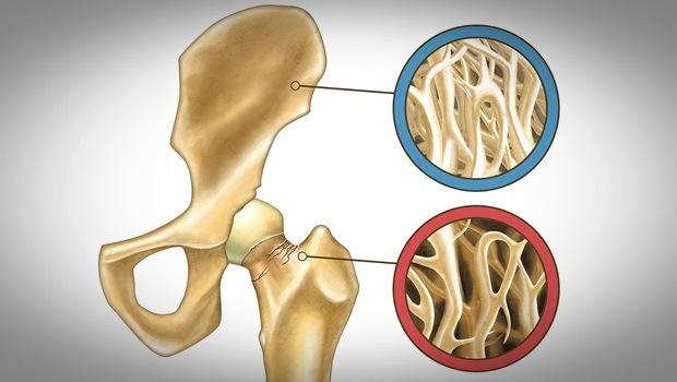 Một trong những ưu điểm hàng đầu của hạt điều là hệ cơ, xương.